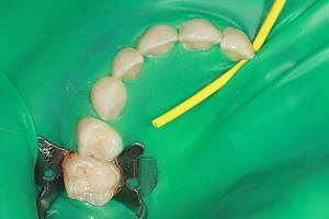 Лечение зубов с коффердамом у детей 3