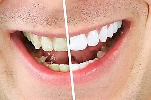 ФОТО: цвет зубов до и после процедуры отбеливания.