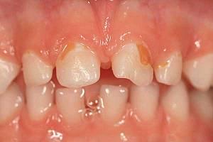 ФОТО: Бутылочный кариес зубов у ребёнка в 3 года