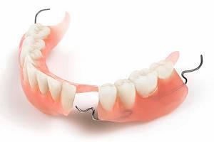 ФОТО: Частичный съёмный зубной протез с опорой на здоровые зубы.