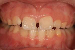 Зубной ряд в 9 лет