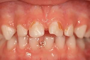 ФОТО: зубы у ребёнка в 3 года. Промежутки между зубами.