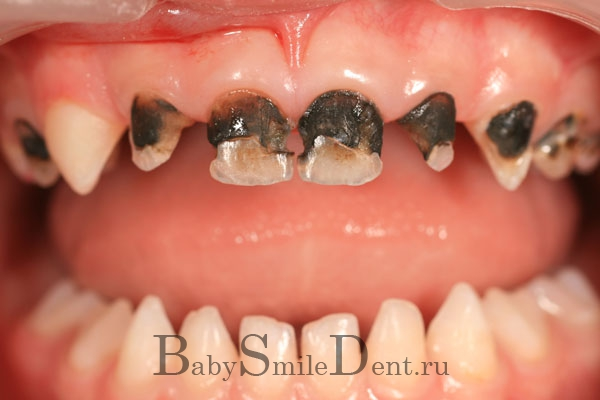 У ребенка зубы почернели